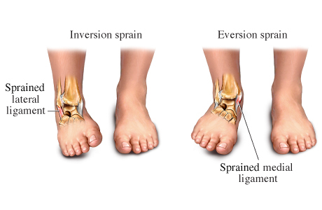 the science behind a sprained ankle science in the city