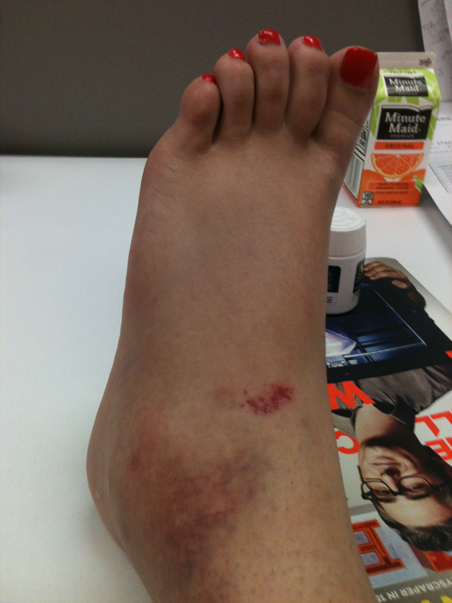 The Science Behind: A Sprained Ankle – Science in the City